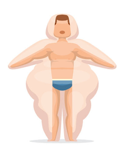 bariatric-surgery-3
