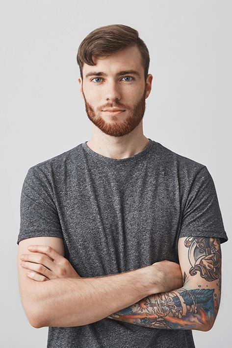 beard-transplant-4