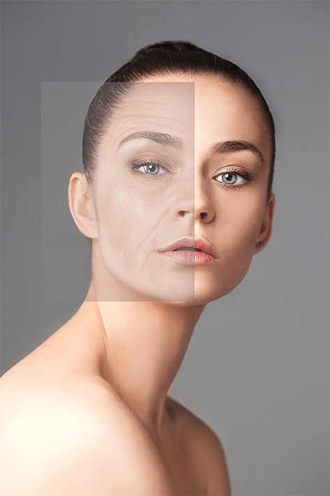 face-lift-left-4