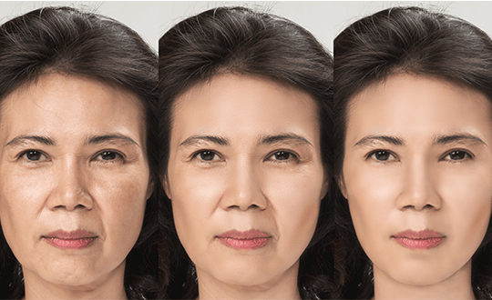 face-lift-left-6