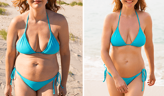 liposuction-right-5