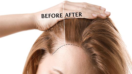women-hair-transplant-1