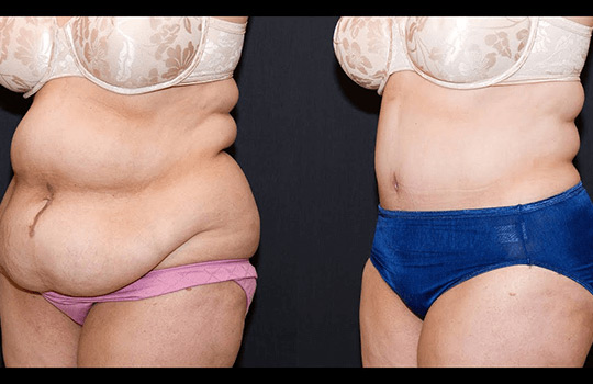 tummy-tuck-2-left
