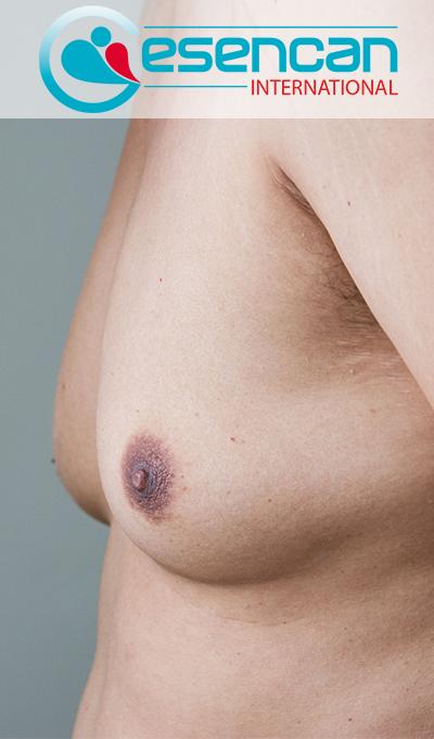 Gynecomastia-mid-3