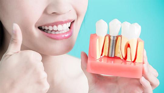 dental-implant-1