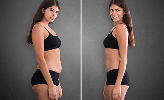 liposuction-first-2