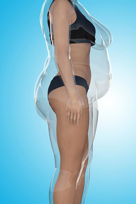liposuction-left-4