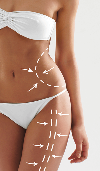liposuction-middle-3