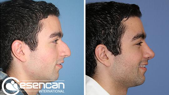 nose-job-rhinoplasty-5