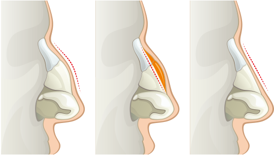 rhinoplasty-2